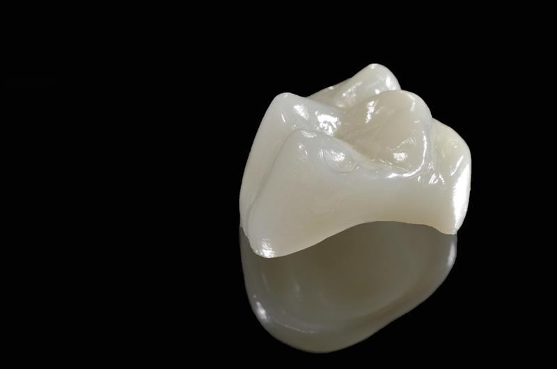 Porcelain Crowns  Hattiesburg, MS