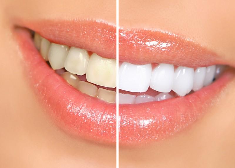 Teeth Whitening  Hattiesburg, MS